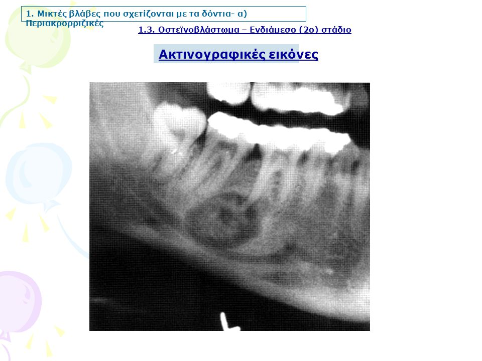 Ακτινογραφικές εικόνες 1.3. Οστεϊνοβλάστωμα – Ενδιάμεσο (2ο) στάδιο 1. Μικτές βλάβες που σχετίζονται με τα δόντια- α) Περιακρορριζικές