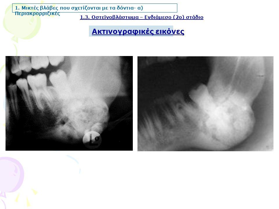 1.3. Οστεϊνοβλάστωμα – Ενδιάμεσο (2ο) στάδιο Ακτινογραφικές εικόνες 1. Μικτές βλάβες που σχετίζονται με τα δόντια- α) Περιακρορριζικές