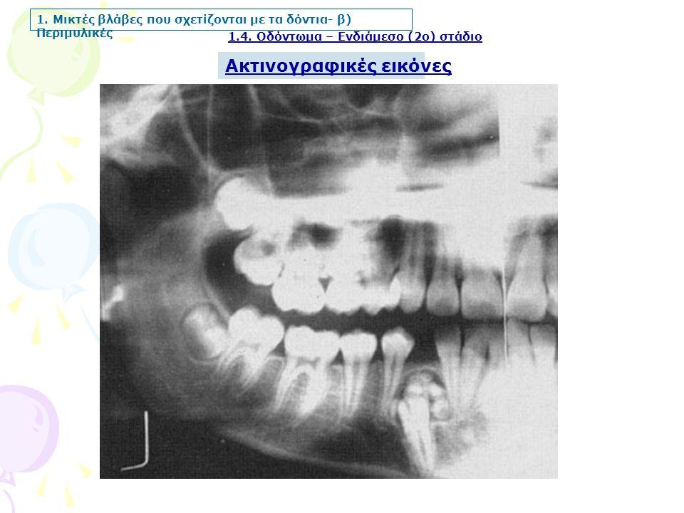 1. Μικτές βλάβες που σχετίζονται με τα δόντια- β) Περιμυλικές Ακτινογραφικές εικόνες 1.4. Οδόντωμα – Ενδιάμεσο (2ο) στάδιο