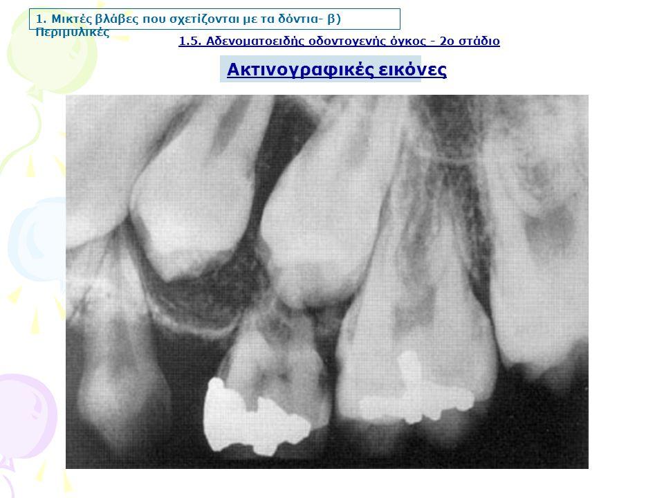 1.5. Αδενοματοειδής οδοντογενής όγκος - 2ο στάδιο 1. Μικτές βλάβες που σχετίζονται με τα δόντια- β) Περιμυλικές Ακτινογραφικές εικόνες