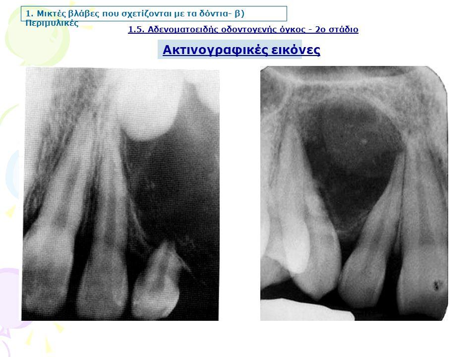 1.5.Αδενοματοειδής οδοντογενής όγκος - 2ο στάδιο 1.
