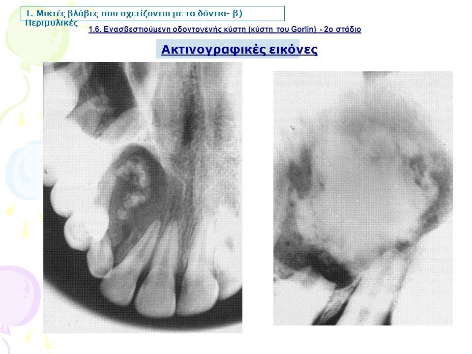 1.6. Ενασβεστιούμενη οδοντογενής κύστη (κύστη του Gorlin) - 2ο στάδιο 1. Μικτές βλάβες που σχετίζονται με τα δόντια- β) Περιμυλικές Ακτινογραφικές εικ