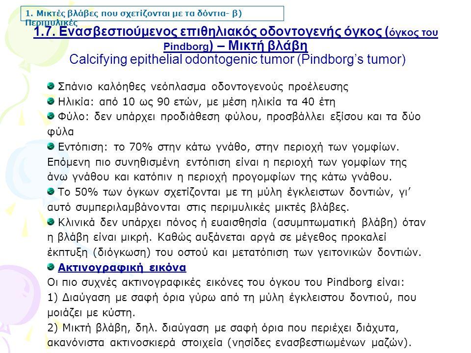 1.7. Ενασβεστιούμενος επιθηλιακός οδοντογενής όγκος ( όγκος του Pindborg ) – Μικτή βλάβη Calcifying epithelial odontogenic tumor (Pindborg's tumor) 1.