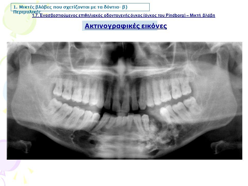 1.7. Ενασβεστιούμενος επιθηλιακός οδοντογενής όγκος (όγκος του Pindborg) – Μικτή βλάβη 1. Μικτές βλάβες που σχετίζονται με τα δόντια- β) Περιμυλικές Α
