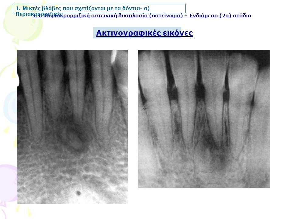 Ακτινογραφικές εικόνες 1.1. Περιακρορριζική οστεϊνική δυσπλασία (οστεϊνωμα) – Ενδιάμεσο (2ο) στάδιο 1. Μικτές βλάβες που σχετίζονται με τα δόντια- α)
