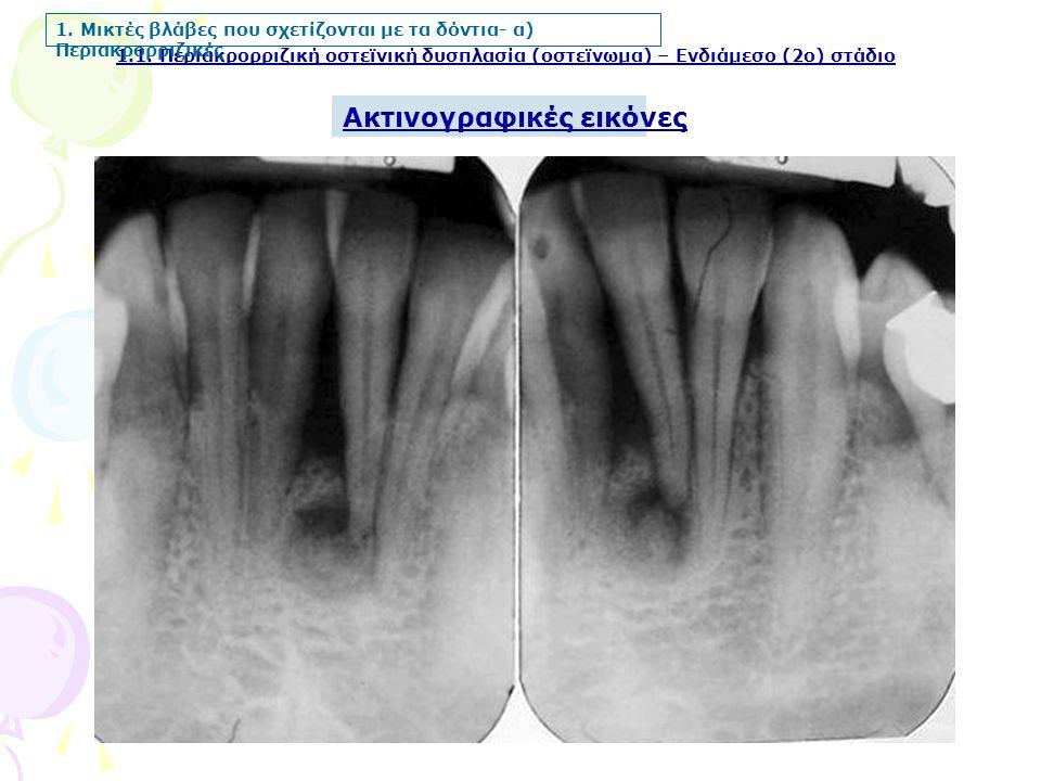 1.1. Περιακρορριζική οστεϊνική δυσπλασία (οστεϊνωμα) – Ενδιάμεσο (2ο) στάδιο Ακτινογραφικές εικόνες 1. Μικτές βλάβες που σχετίζονται με τα δόντια- α)