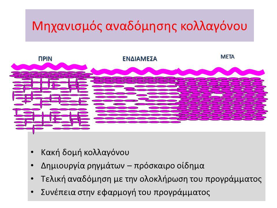 Μηχανισμός αναδόμησης κολλαγόνου Κακή δομή κολλαγόνου Δημιουργία ρηγμάτων – πρόσκαιρο οίδημα Τελική αναδόμηση με την ολοκλήρωση του προγράμματος Συνέπεια στην εφαρμογή του προγράμματος ΠΡΙΝΕΝΔΙΑΜΕΣΑ ΜΕΤΑ