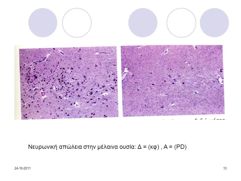 Νευρωνική απώλεια στην μέλαινα ουσία: Δ = (κφ), Α = (PD) 24-10-201113