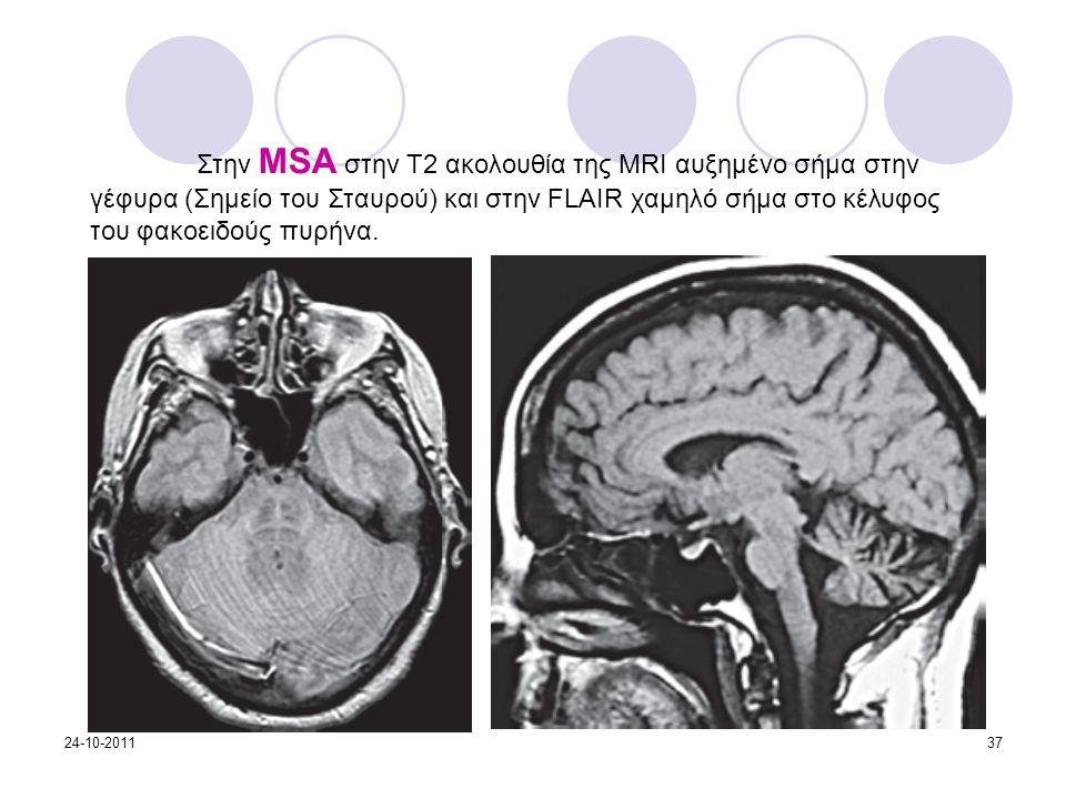 Στην MSA στην Τ2 ακολουθία της MRI αυξημένο σήμα στην γέφυρα (Σημείο του Σταυρού) και στην FLAIR χαμηλό σήμα στο κέλυφος του φακοειδούς πυρήνα. 24-10-