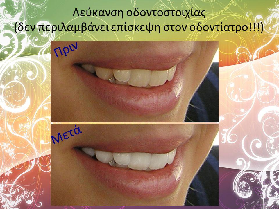 Λεύκανση οδοντοστοιχίας (δεν περιλαμβάνει επίσκεψη στον οδοντίατρο!!!) Πριν Μετά