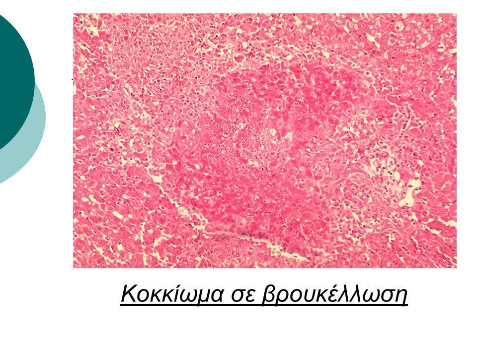 Κοκκίωμα σε βρουκέλλωση