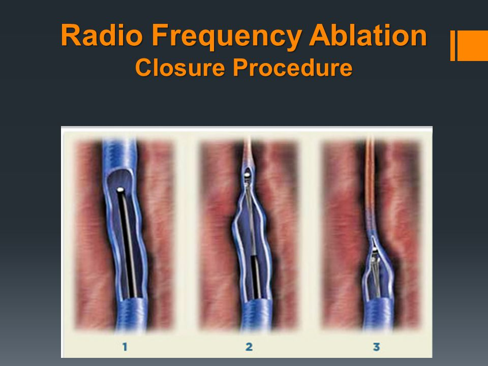 Radio Frequency Ablation Closure Procedure
