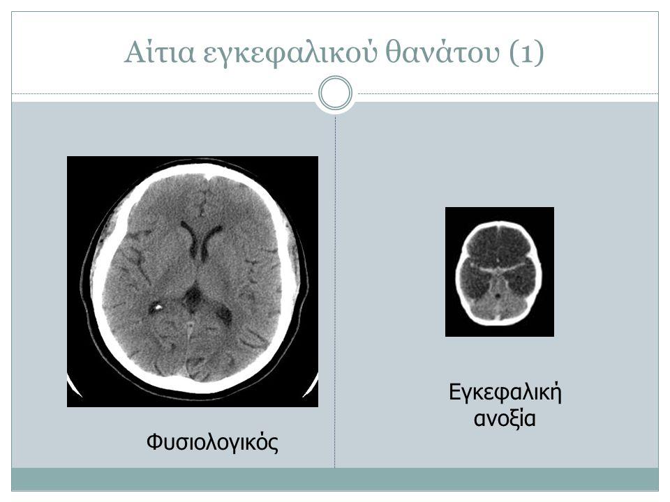 Αίτια εγκεφαλικού θανάτου (1) Φυσιολογικός Εγκεφαλική ανοξία