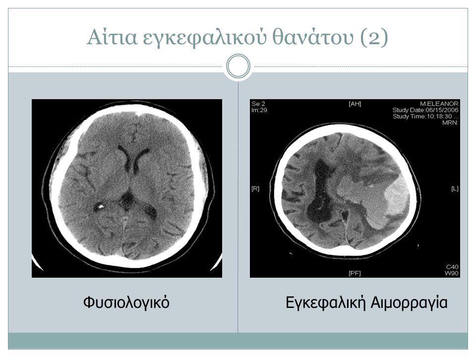 Αίτια εγκεφαλικού θανάτου (2) ΦυσιολογικόΕγκεφαλική Αιμορραγία