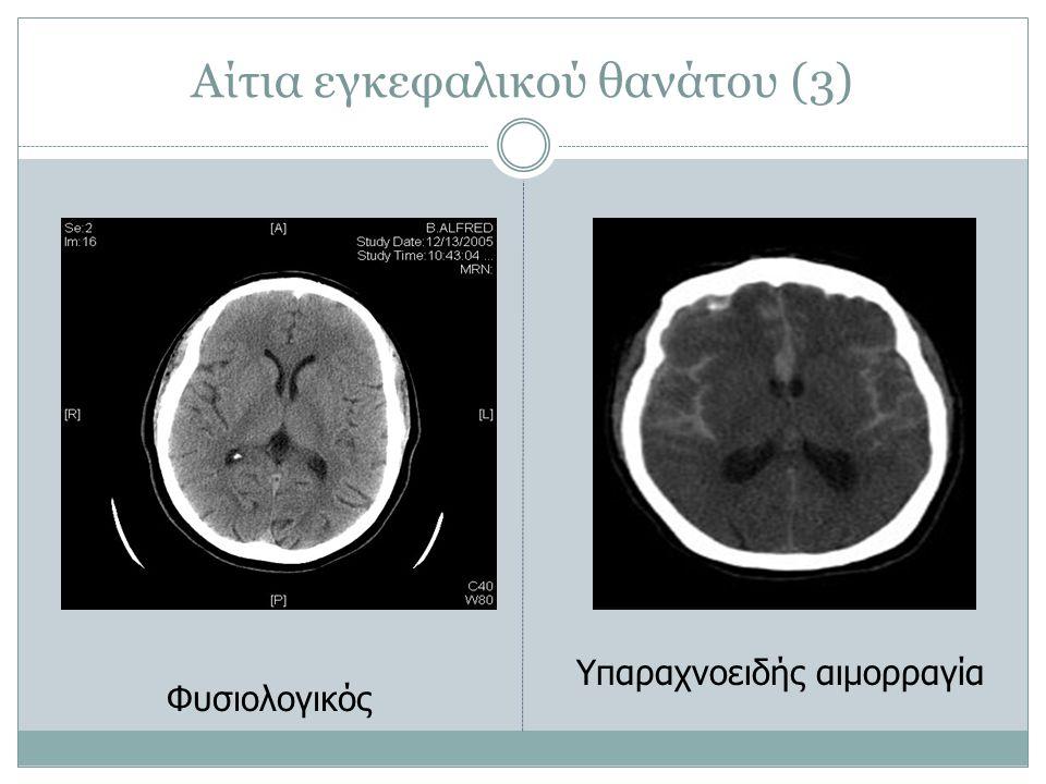 Αίτια εγκεφαλικού θανάτου (3) Φυσιολογικός Υπαραχνοειδής αιμορραγία