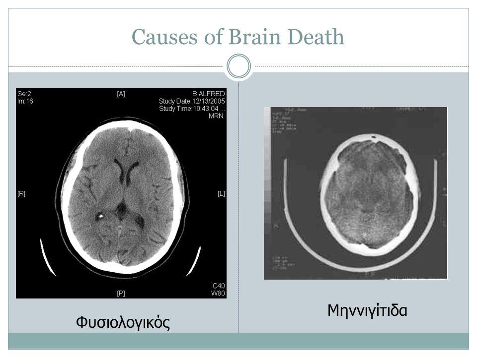 Causes of Brain Death Φυσιολογικός Μηννιγίτιδα