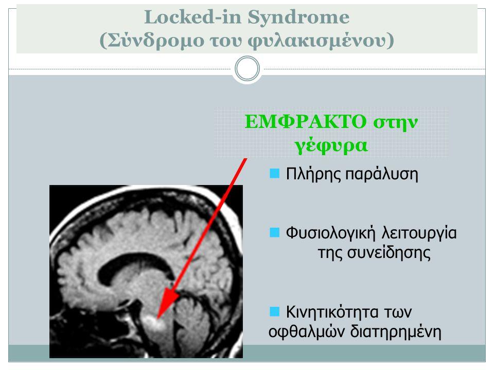Locked-in Syndrome (Σύνδρομο του φυλακισμένου) ΕΜΦΡΑΚΤΟ στην γέφυρα Πλήρης παράλυση Φυσιολογική λειτουργία της συνείδησης Κινητικότητα των οφθαλμών δι