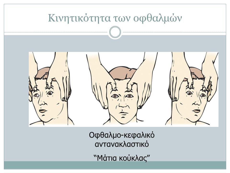 """Κινητικότητα των οφθαλμών Οφθαλμο-κεφαλικό αντανακλαστικό """"Μάτια κούκλας"""""""