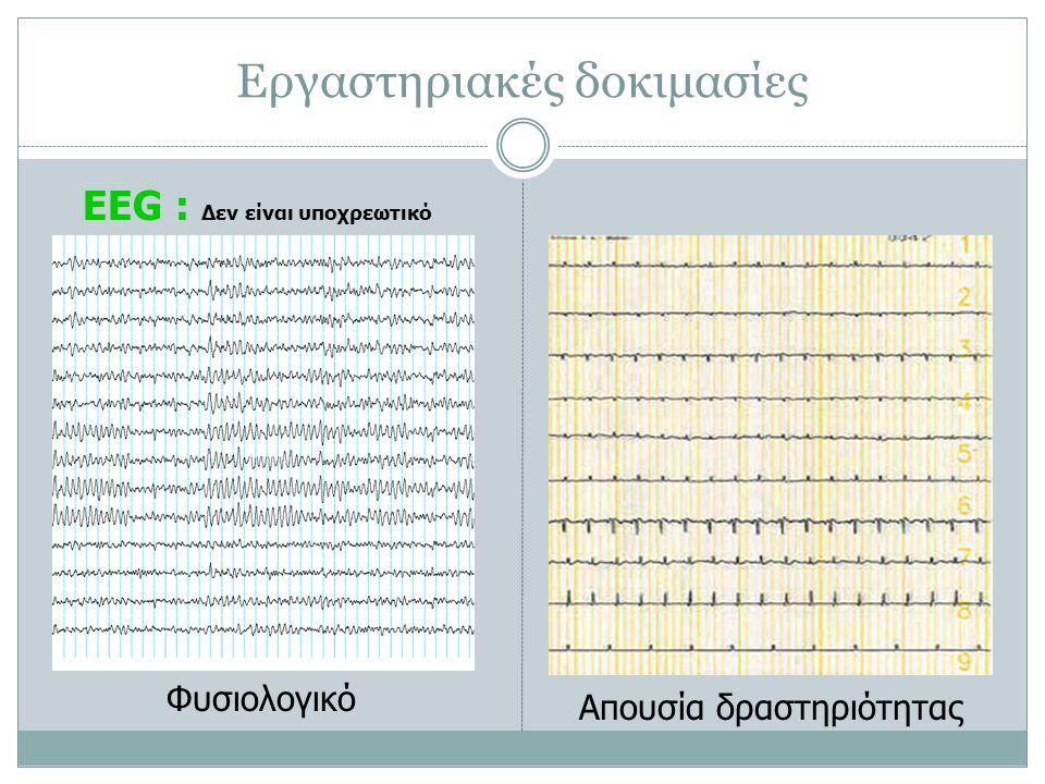 Εργαστηριακές δοκιμασίες EEG : Δεν είναι υποχρεωτικό Φυσιολογικό Απουσία δραστηριότητας