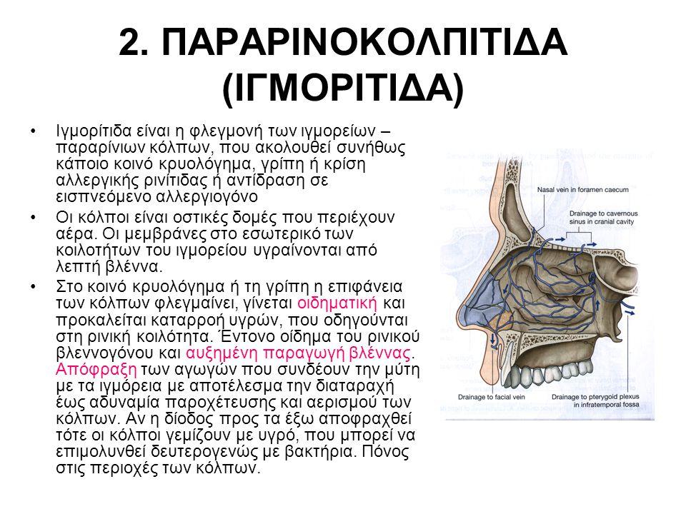 2. ΠΑΡΑΡΙΝΟΚΟΛΠΙΤΙΔΑ (ΙΓΜΟΡΙΤΙΔΑ) Ιγμορίτιδα είναι η φλεγμονή των ιγμορείων – παραρίνιων κόλπων, που ακολουθεί συνήθως κάποιο κοινό κρυολόγημα, γρίπη