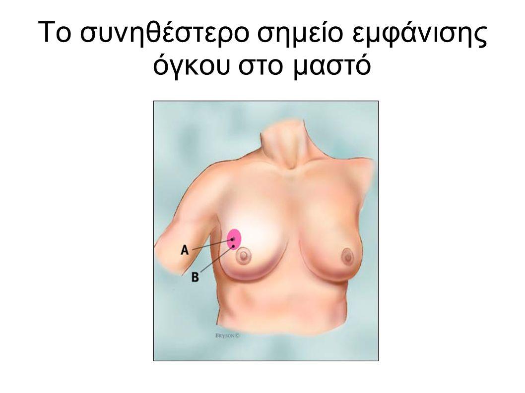 Το συνηθέστερο σημείο εμφάνισης όγκου στο μαστό