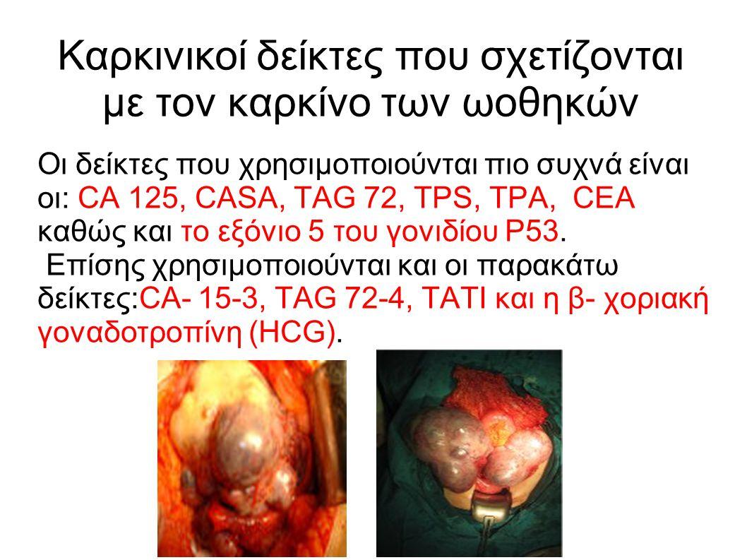 Καρκινικοί δείκτες που σχετίζονται με τον καρκίνο των ωοθηκών Οι δείκτες που χρησιμοποιούνται πιο συχνά είναι οι: CA 125, CASA, TAG 72, ΤPS, TPA, CEA