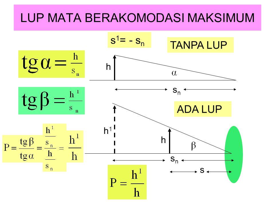LUP MATA BERAKOMODASI MAKSIMUM TANPA LUP s 1 = - s n ADA LUP h h1h1 s n s h