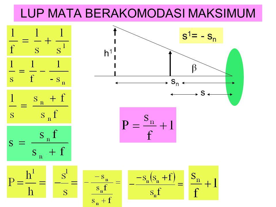 LUP MATA BERAKOMODASI MAKSIMUM s 1 = - s n h1h1 s n s
