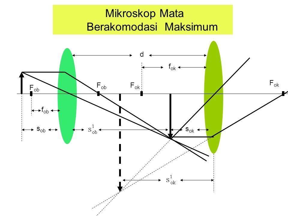 F ob F ok Mikroskop Mata Berakomodasi Maksimum s ob f ob f ok s ok d