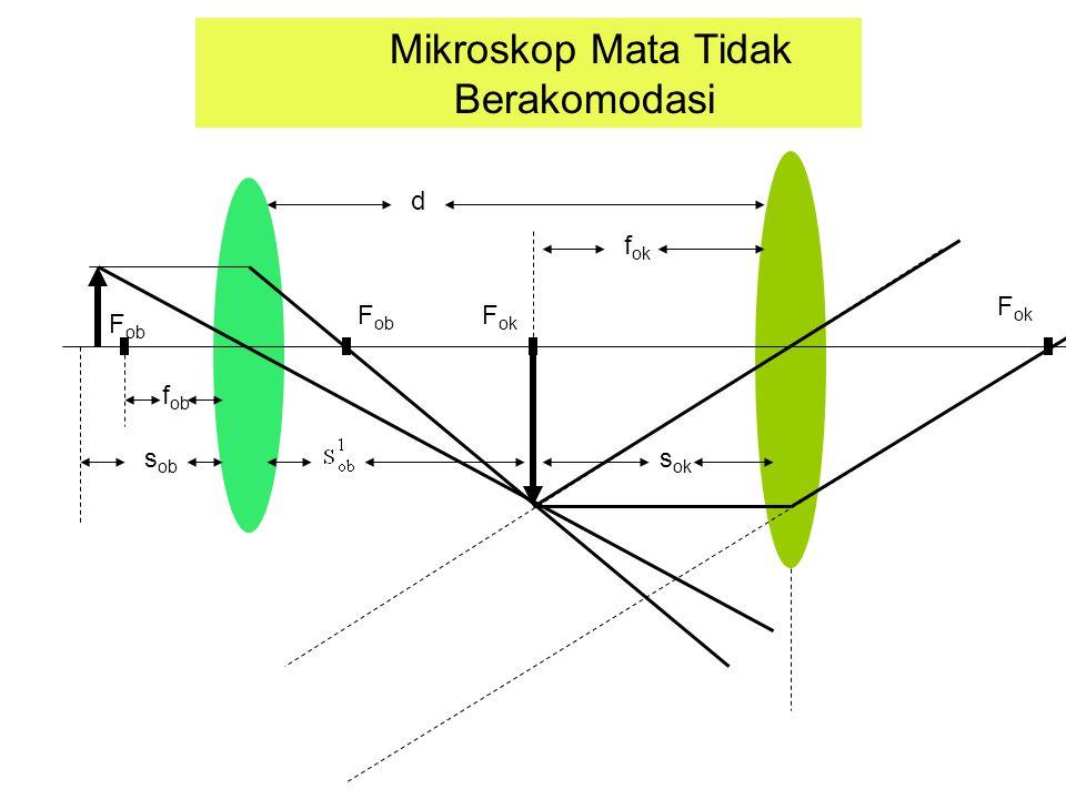 F ob F ok Mikroskop Mata Tidak Berakomodasi s ob f ob f ok s ok d