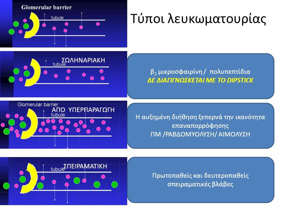 Τύποι λευκωματουρίας β 2 μικροσφαιρίνη / πολυπεπτίδια ΔΕ ΔΙΑΓΙΓΝΩΣΚΕΤΑΙ ΜΕ ΤΟ DIPSTICK ΣΩΛΗΝΑΡΙΑΚΗ ΑΠΟ ΥΠΕΡΠΑΡΑΓΩΓΗ Η αυξημένη διήθηση ξεπερνά την ικα