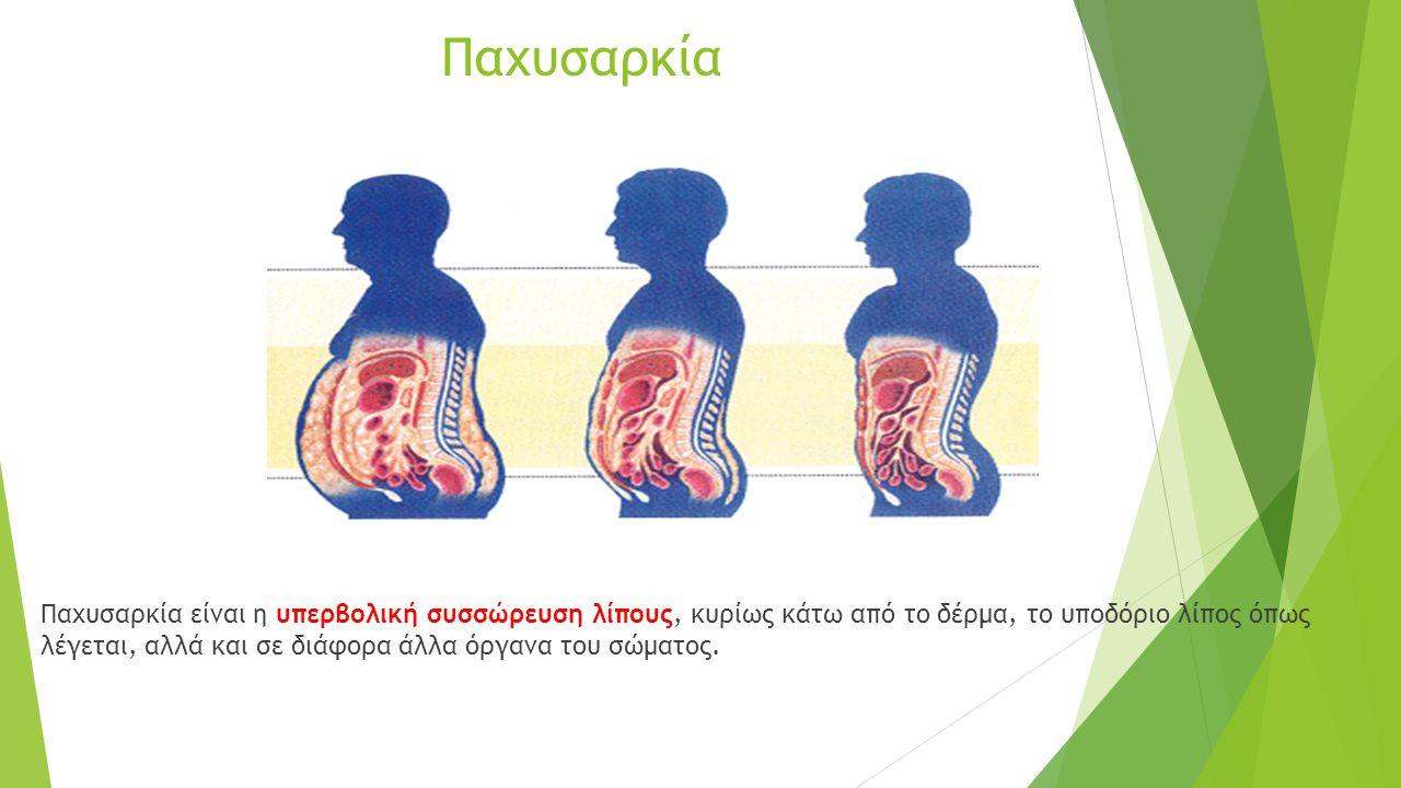 Παχυσαρκία Παχυσαρκία είναι η υπερβολική συσσώρευση λίπους, κυρίως κάτω από το δέρμα, το υποδόριο λίπος όπως λέγεται, αλλά και σε διάφορα άλλα όργανα