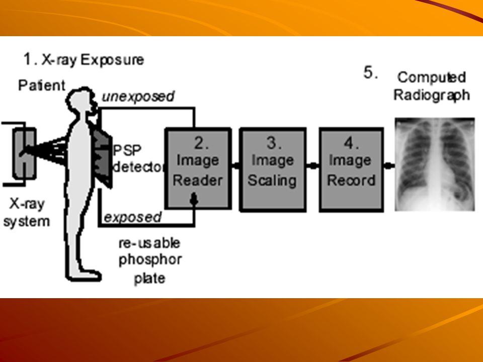Μπροστά από τον ασθενή τοποθετείται η πλάκα απεικόνισης(ΙΡ), η οποία σχηματίζει το λανθάνον είδωλο από τις ακτίνες Χ που περνούν μέσα από τον ασθενή και κατόπιν από την πλάκα.