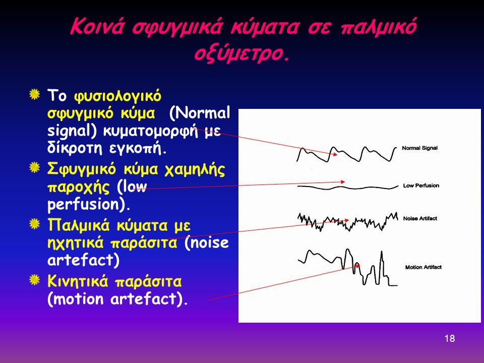 18 Κοινά σφυγμικά κύματα σε παλμικό οξύμετρο. Το φυσιολογικό σφυγμικό κύμα (Normal signal) κυματομορφή με δίκροτη εγκοπή. Σφυγμικό κύμα χαμηλής παροχή