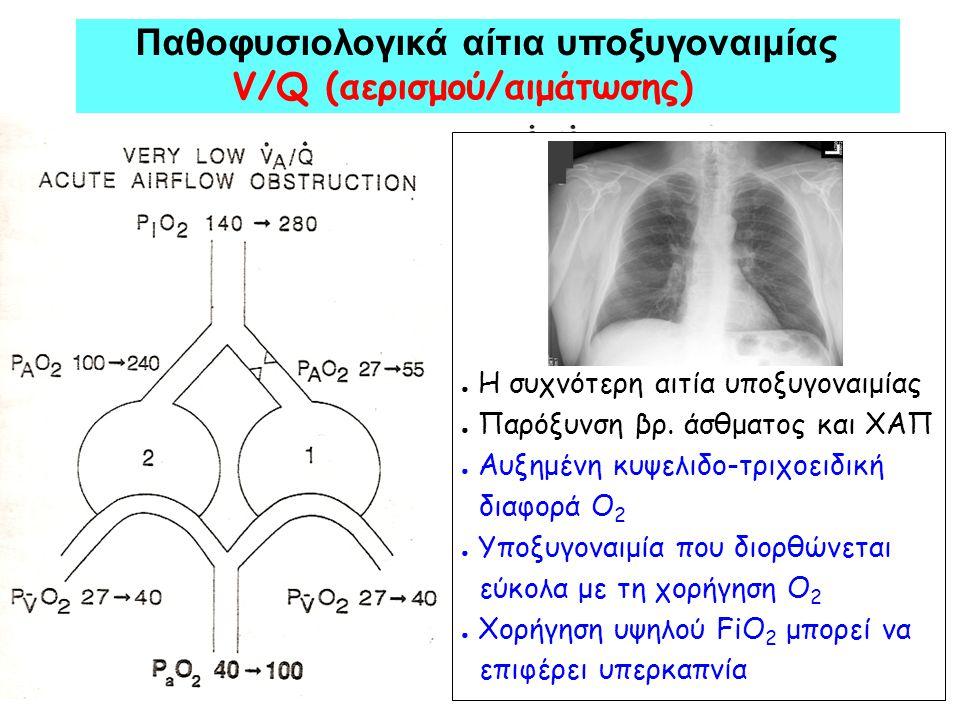 ● Η συχνότερη αιτία υποξυγοναιμίας ● Παρόξυνση βρ. άσθματος και ΧΑΠ ● Aυξημένη κυψελιδο-τριχοειδική διαφορά Ο 2 ● Υποξυγοναιμία που διορθώνεται εύκολα