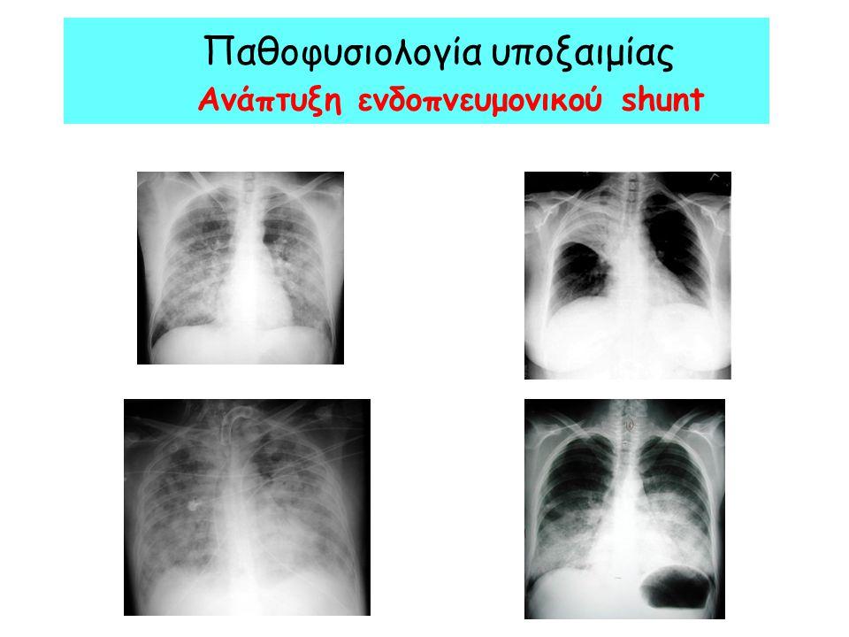 Παθοφυσιολογία υποξαιμίας Ανάπτυξη ενδοπνευμονικού shunt