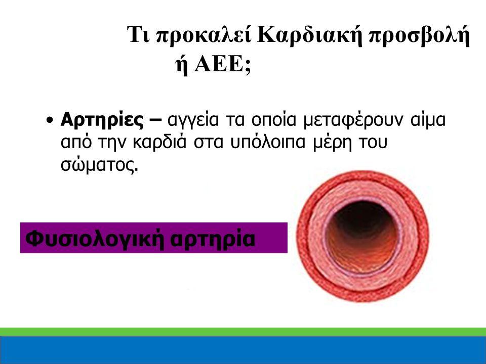Αρτηρίες – αγγεία τα οποία μεταφέρουν αίμα από την καρδιά στα υπόλοιπα μέρη του σώματος. Φυσιολογική αρτηρία Τι προκαλεί Καρδιακή προσβολή ή ΑΕΕ;