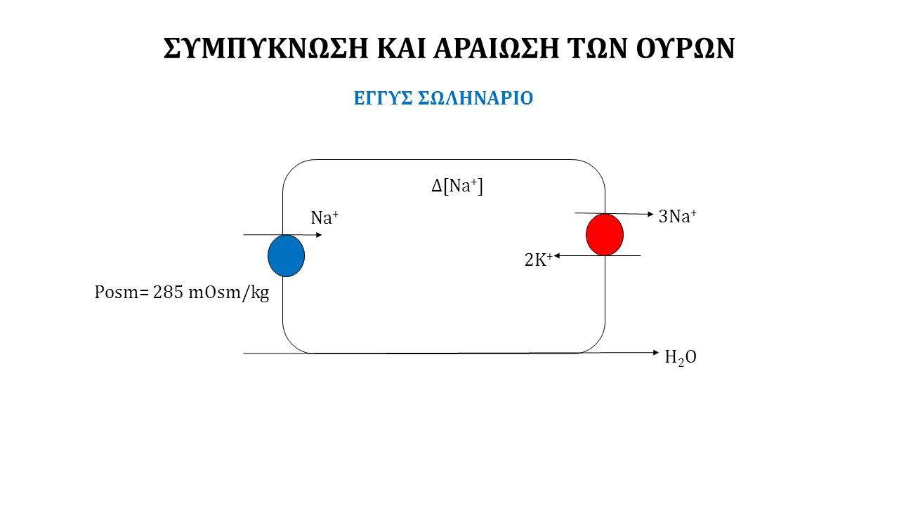 ΣΥΜΠΥΚΝΩΣΗ ΚΑΙ ΑΡΑΙΩΣΗ ΤΩΝ ΟΥΡΩΝ ΕΓΓΥΣ ΣΩΛΗΝΑΡΙΟ 3Na + 2K + Δ[Na + ] Na + Η2ΟΗ2Ο Posm= 285 mOsm/kg