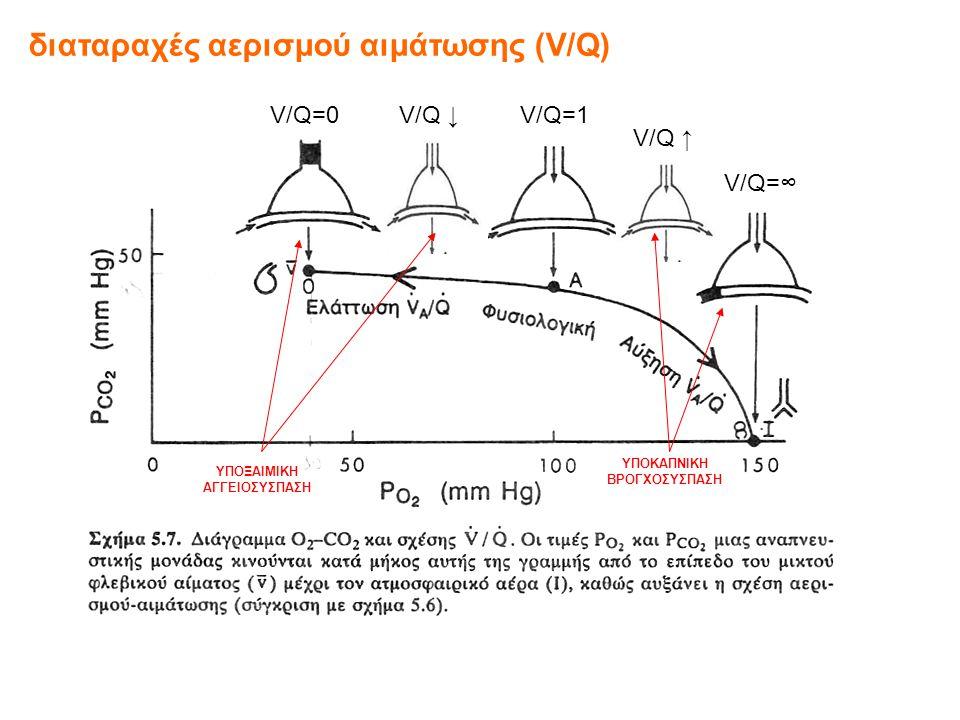 διαταραχές αερισμού αιμάτωσης (V/Q) V/Q=0V/Q=1 V/Q=∞ V/Q ↓ V/Q ↑ ΥΠΟΞΑΙΜΙΚΗ ΑΓΓΕΙΟΣΥΣΠΑΣΗ ΥΠΟΚΑΠΝΙΚΗ ΒΡΟΓΧΟΣΥΣΠΑΣΗ