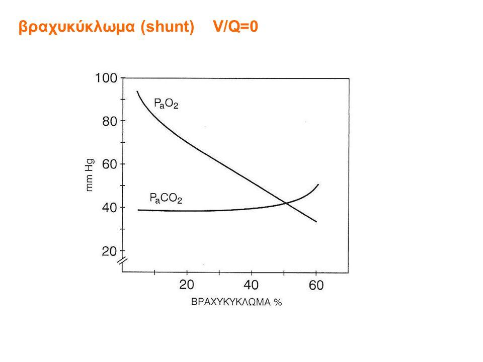 βραχυκύκλωμα (shunt) V/Q=0