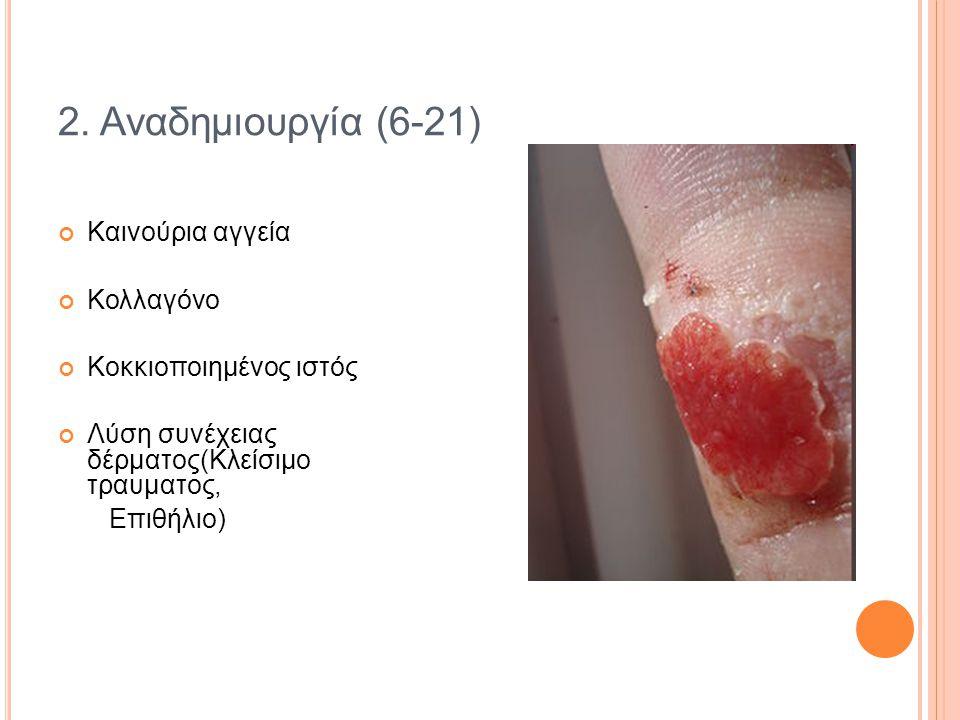 2. Αναδημιουργία (6-21) Καινούρια αγγεία Κολλαγόνο Κοκκιοποιημένος ιστός Λύση συνέχειας δέρματος(Κλείσιμο τραυματος, Επιθήλιο)