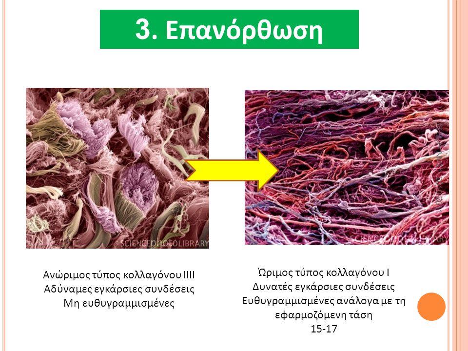 4. ΕπανόρθωσηΝε IST/UH ΝΜΣ1 2010-2011 Ανώριμος τύπος κολλαγόνου ΙΙΙI Αδύναμες εγκάρσιες συνδέσεις Μη ευθυγραμμισμένες Ώριμος τύπος κολλαγόνου Ι Δυνατέ