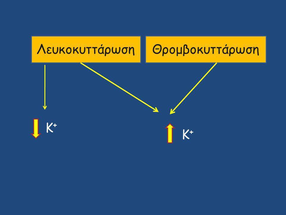 ΛευκοκυττάρωσηΘρομβοκυττάρωση Κ+Κ+ Κ+Κ+