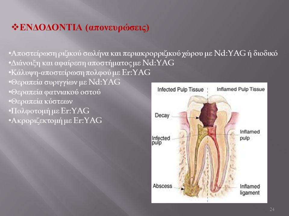 24  ΕΝΔΟΔΟΝΤΙΑ ( απονευρώσεις ) Αποστείρωση ριζικού σωλήνα και περιακρορριζικού χώρου με Nd:YAG ή διοδικό Διάνοιξη και αφαίρεση αποστήματος με Nd:YAG