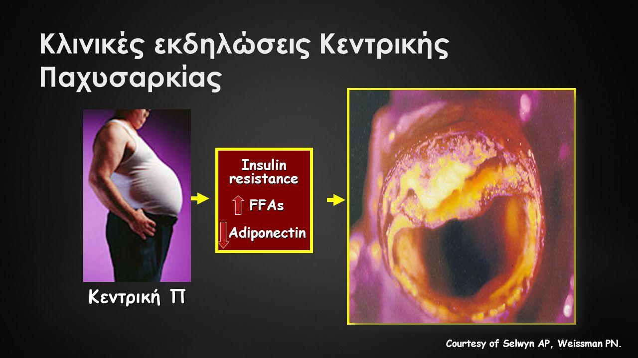 Type 2 diabetes dysglycaemia Type 2 diabetes dysglycaemia Dyslipidaemia Dyslipidaemia low HDL low HDL small, dense LDL small, dense LDL hypertriglyceridaemia hypertriglyceridaemia Hypertension Hypertension Endothelial dysfunction Inflammation (hsCRP) Endothelial dysfunction Inflammation (hsCRP) Impaired thrombolysis Impaired thrombolysis  PAI-1  PAI-1 Κεντρική Π Insulinresistance FFAs FFAs Adiponectin Adiponectin Courtesy of Selwyn AP, Weissman PN.