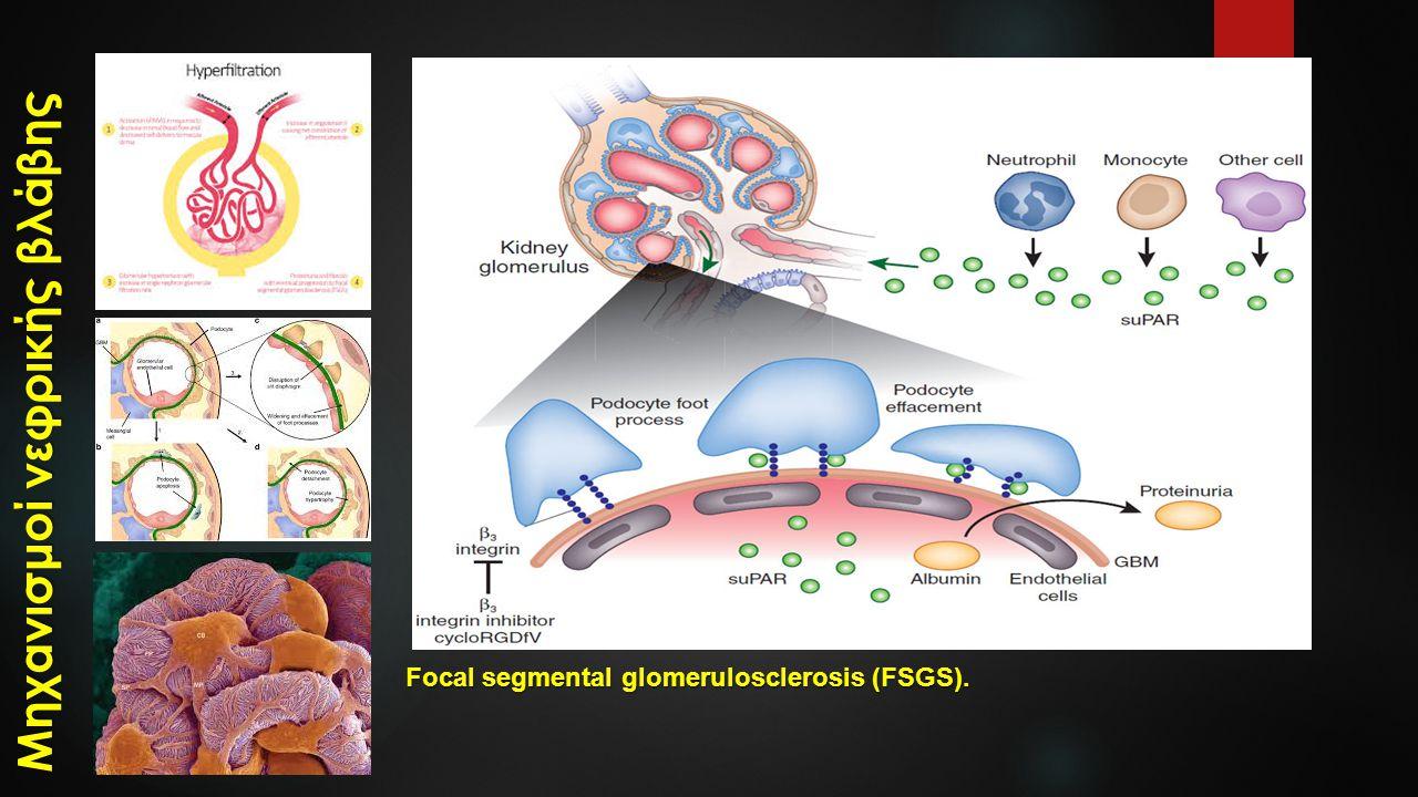 Focal segmental glomerulosclerosis (FSGS). Μηχανισμοί νεφρικής βλάβης