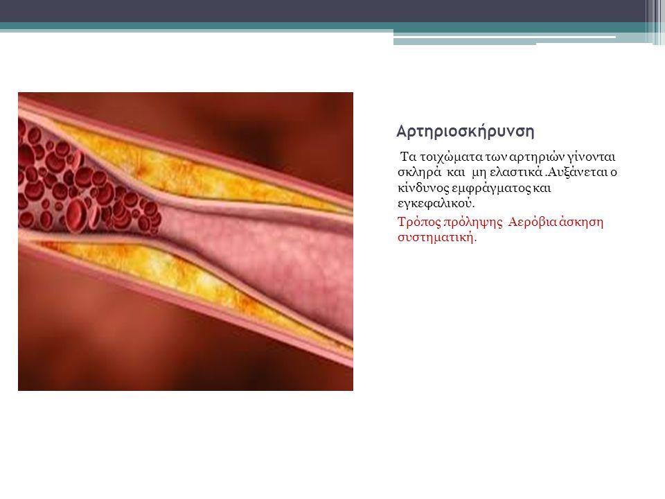 Αθηροσκλήρωση : Στην αθηροσκλήρωση η αρτηρίες γίνονται πιο στενές (βουλώνουν) επίσης αυξάνει τον κίνδυνο πρόκλησης καρδιακού εμφράγματος. Η Αερόβια άσ