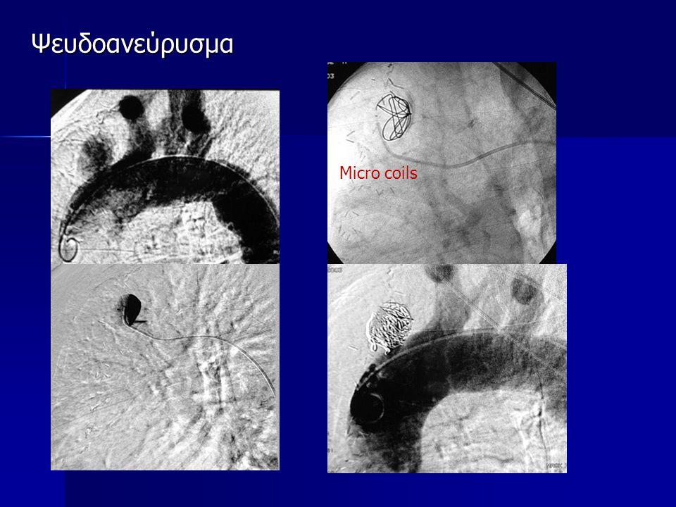 Ψευδοανεύρυσμα Micro coils