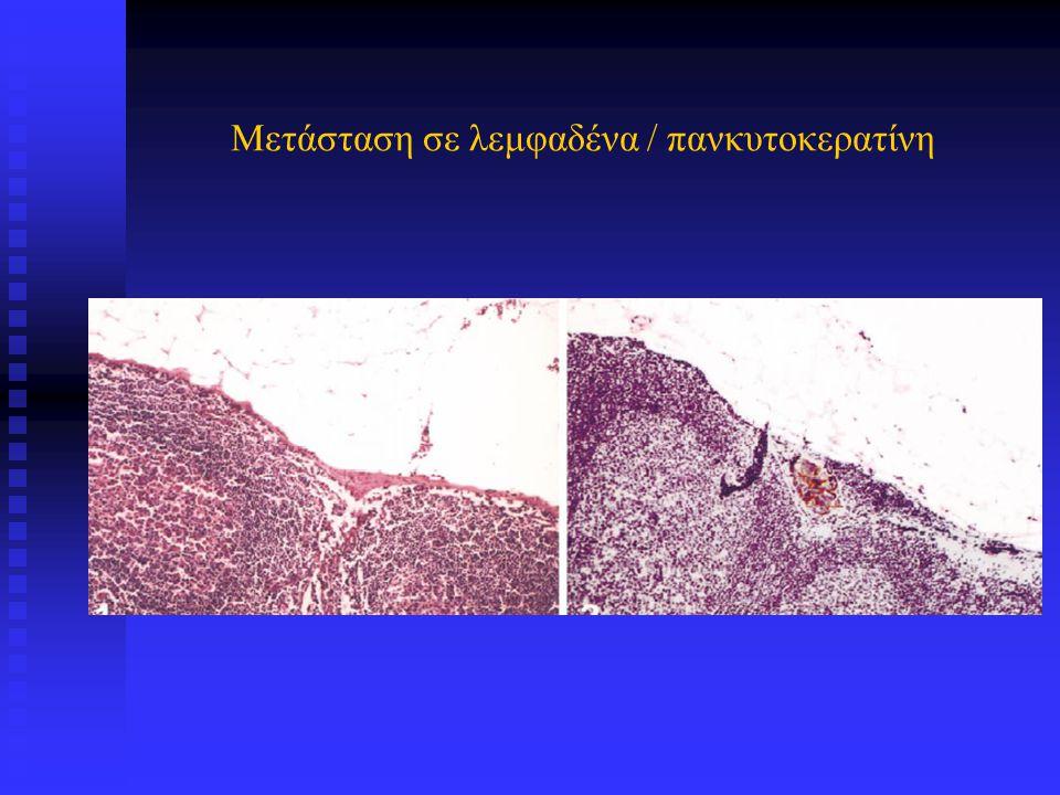 Καρκινικοί δείκτες / Διάγνωση Διάγνωση των νεοπλασμάτων μεσεγχυματικής αρχής, τα οποία χαρακτηρίζονται από μεγάλη ετερογένεια, με ποικίλες κατευθύνσεις διαφοροποίησης και συχνές δυσκολίες στη διαφορική διάγνωση από Διάγνωση των νεοπλασμάτων μεσεγχυματικής αρχής, τα οποία χαρακτηρίζονται από μεγάλη ετερογένεια, με ποικίλες κατευθύνσεις διαφοροποίησης και συχνές δυσκολίες στη διαφορική διάγνωση από  καλοήθεις ψευδονεοπλασματικές αλλοιώσεις  κακοήθη νεοπλάσματα μη μεσεγχυματικής αρχής αρχής