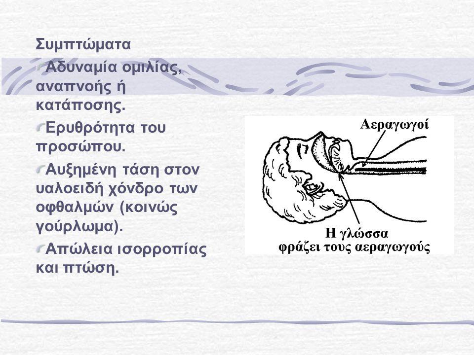 Συμπτώματα Αδυναμία ομιλίας, αναπνοής ή κατάποσης.